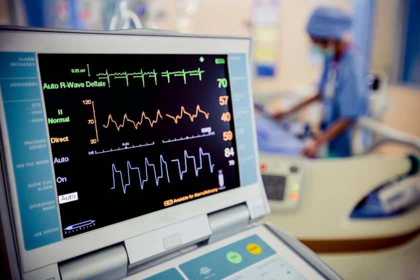 La ce va puteti astepta de la un EKG si care sunt riscurile acestuia?