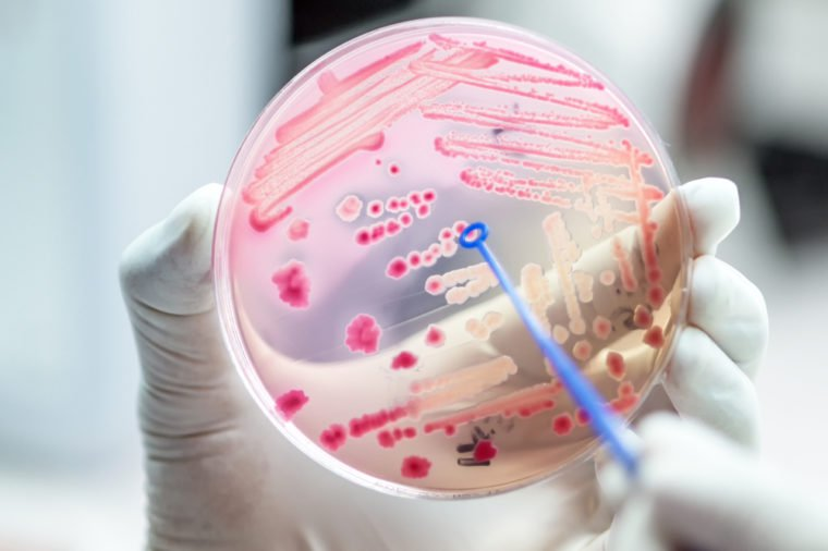 Administrarea probioticelor in cadrul dietelor de slabit